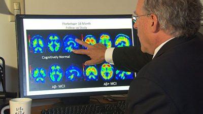 پژوهشگران بریتانیایی با توسعه فن آوری پرتونگاری، موفق به ثبت تصاویر هولو گرافیک یا تمام نگار از مغز شدند. آنها می گویند، این تکنولوژی تازه به تشخیص بیماری های مغزی نظیر پارکینسون و آلزایمر کمک می کند.