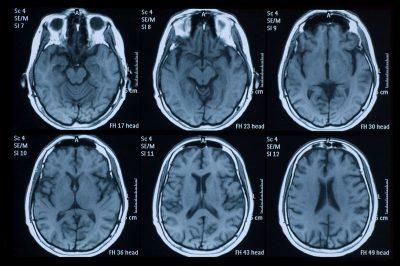 تصویربرداری رزونانس مغناطیسی (MRI): در این روش، از آهنربای قوی و امواج رادیویی برای ایجاد دورنمایی دقیق از مغز بهرهگیری میشود. این آزمایش ممکن است بعد از تثبیت کردن وضعیت بالینی فرد انجام شود