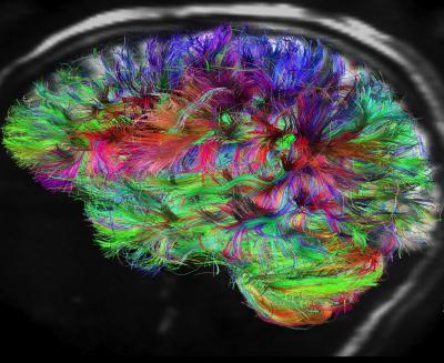 این دستگاه ام آر آی جدید، با پرتونگاری از اتم هیدروژن برانگیخته در مولوکول های آبی که بین سلول های ماده سفید مغز در حرکت و تبادل هستند، قادر به تهیه تصاویر تمام نگار یا هولوگرام از محل اتصال نورون هاست.