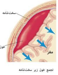 فضای ساب آراکنوئید یا زیر عنکبوتیه، ناحیه ای بین دو پرده پوشاننده مغز است که به طور طبیعی با مایع مغزی ـ نخاعی پر می شود. خونریزی در این ناحیه، یکی از انواع سکته مغزی به شمار می آید و عواقب جدی از جمله فلج، کما و مرگ به همراه دارد.