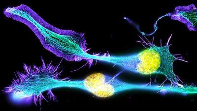 وقتی دانش ما به آنجا رسید که بدانیم چگونه سلول عصبی هدف مولوکولی را کنترل می کند، قادر هستیم تا از طریق نورو تکنولوژی، عصب را کنترل و مولوکول را تحت فرمان درآوریم و این فرآیند پیچیده از طریق یک ابزار الکترونیک ساده اعمال می شود. ابزاری که با تغییر امواج الکترونیکی سلول های عصبی، روند التهاب و بیماری زایی را متوقف کند.