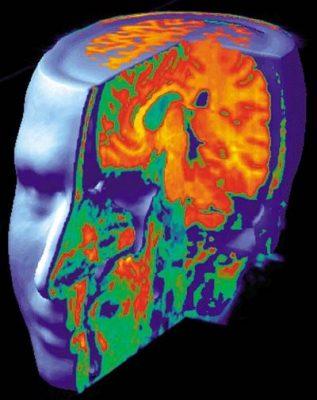 فعالیت دو منطقه در مغز ، ناحیه تحتانی لوب پیشانی ( هسته آکومبنس) و ناحیه فوقانی لوب آهیانه، مورد بررسی قرار گرفت. این دو ناحیه در هنگام دیدن فیلمهای دلخواه فعالیت بیشتری از خود نشان میدهند ( مناطق پاداش در مغز). پژوهشگران دریافتند که در میان این گروه، افرادی که دوست یکدیگر بودند فعالیت این دو منطقه مغزیشان بسیار شبیه یکدیگر است
