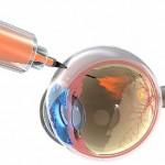 تزریق لوسنتیس در شبکیه چشم بیمار مبتلا به رتینوپاتی دیابتی