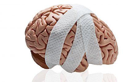نتیجه تصویری برای آسیب های مغزی